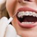 Conheça 9 problemas de não realizar o tratamento ortodôntico